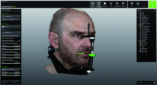 FACE HUNTER – The Zirkonzahn facial scanner